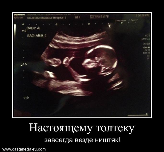 http://s7.uploads.ru/hMczs.jpg